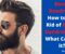 Beard Dandruff – How to Get Rid of Beard Dandruff and What Causes it?